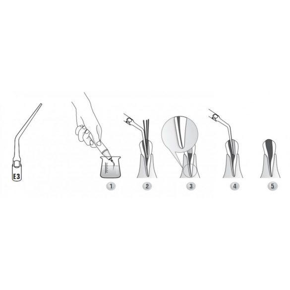 E3 endodonciás depurátor fej
