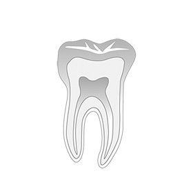 Endodonciai eszközök